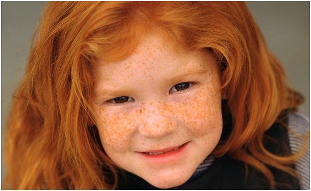Как убрать пигментное пятно у ребенка