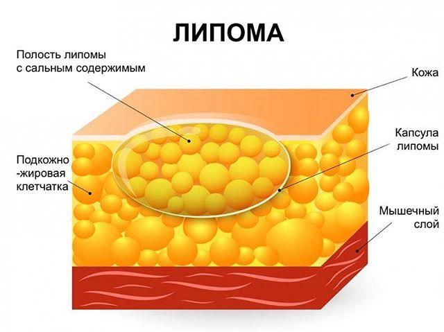 Народные средства от избавления жировиков thumbnail